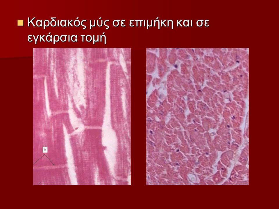 Καρδιακός μύς σε επιμήκη και σε εγκάρσια τομή