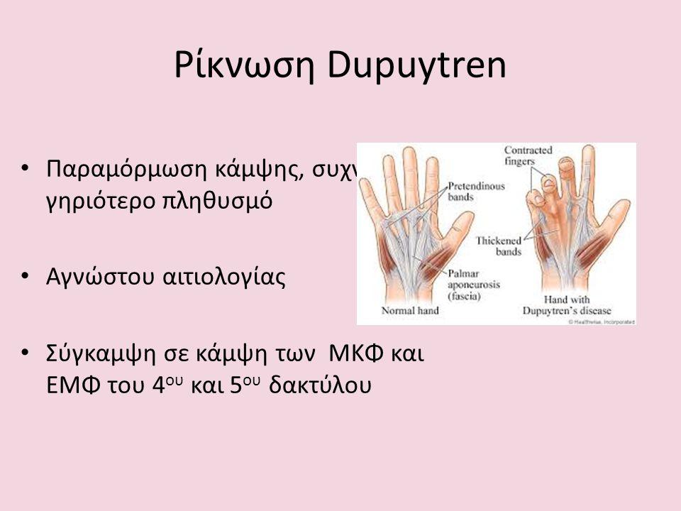 Ρίκνωση Dupuytren Παραμόρμωση κάμψης, συχνά στο γηριότερο πληθυσμό