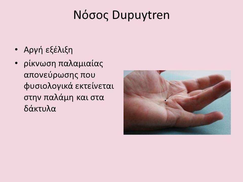 Νόσος Dupuytren Αργή εξέλιξη