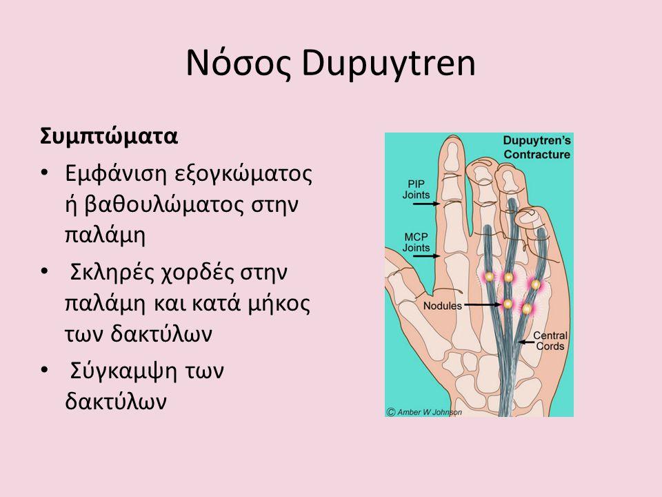 Νόσος Dupuytren Συμπτώματα