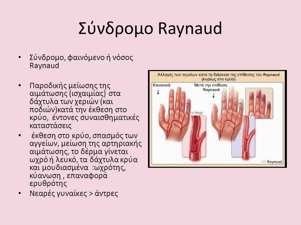 Σύνδρομο Raynaud Σύνδρομο, φαινόμενο ή νόσος Raynaud