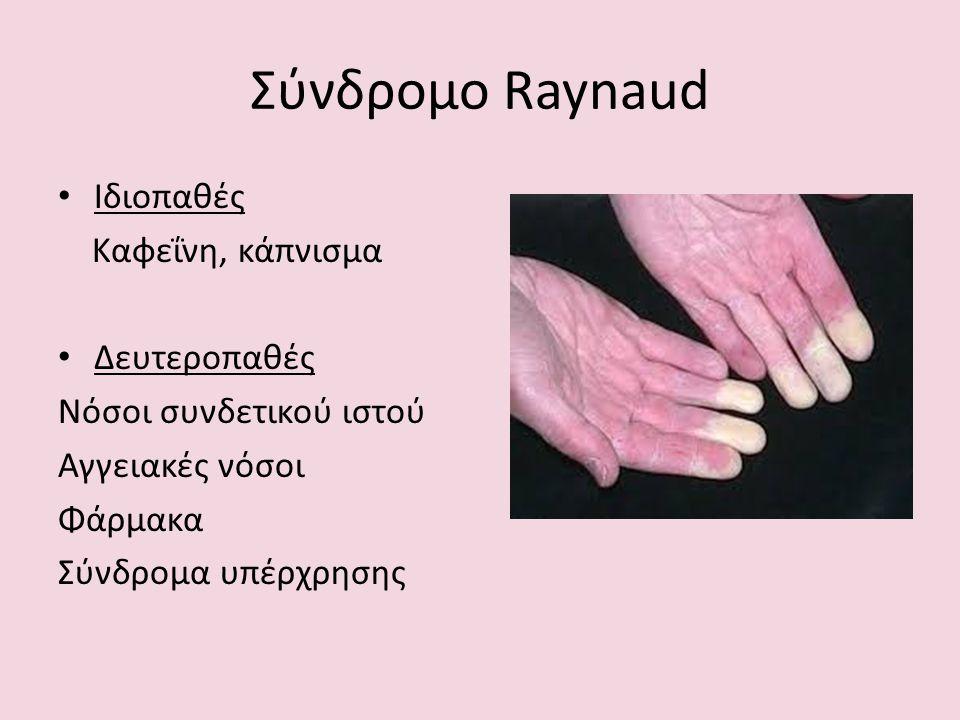 Σύνδρομο Raynaud Ιδιοπαθές Καφεΐνη, κάπνισμα Δευτεροπαθές