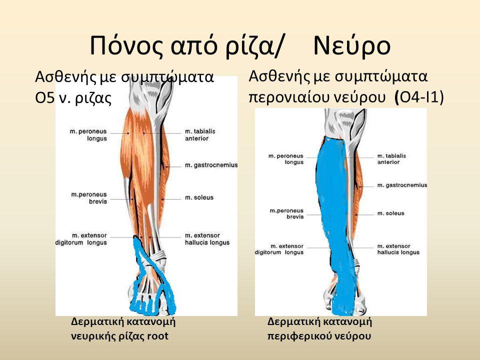 Πόνος από ρίζα/ Νεύρο Ασθενής με συμπτώματα Ο5 ν. ριζας