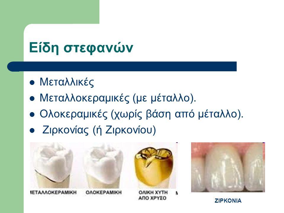 Είδη στεφανών Μεταλλικές Μεταλλοκεραμικές (με μέταλλο).