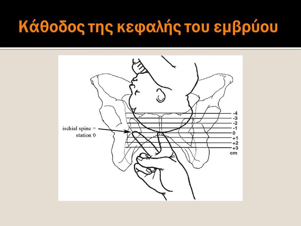Κάθοδος της κεφαλής του εμβρύου