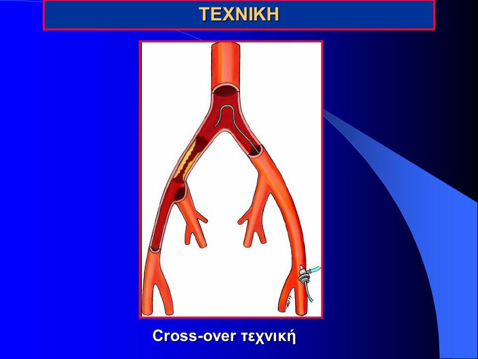 ΤΕΧΝΙΚΗ Cross-over τεχνική 20
