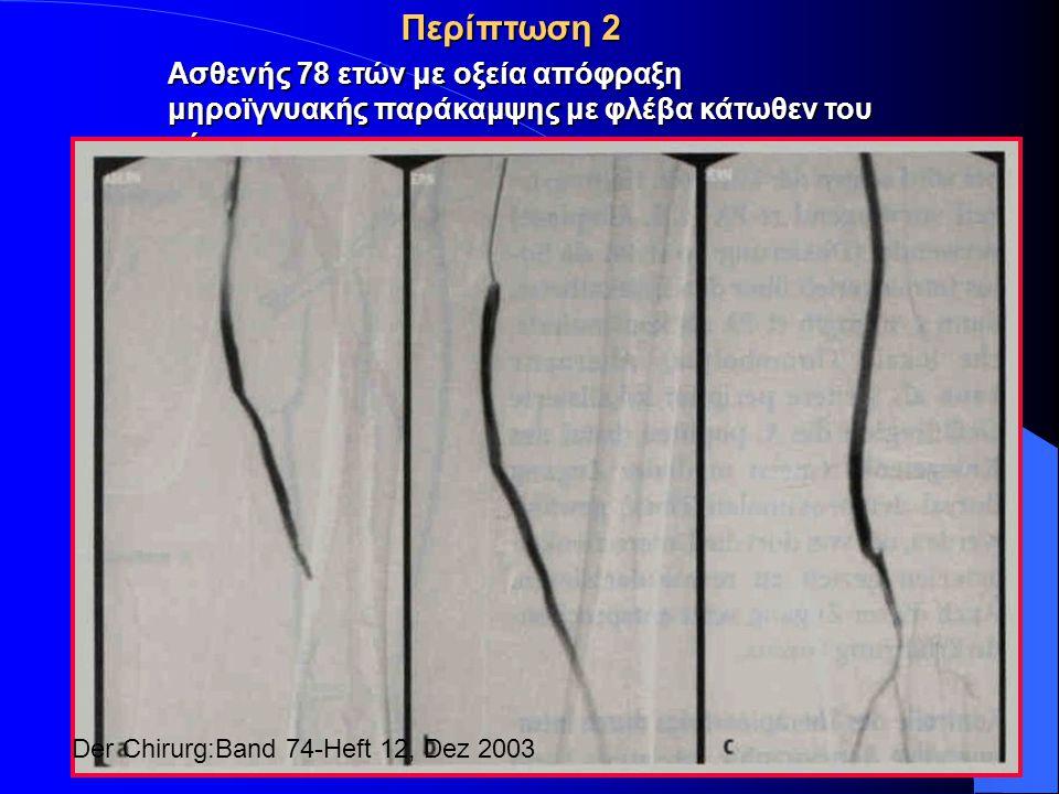 Περίπτωση 2 Ασθενής 78 ετών με οξεία απόφραξη μηροϊγνυακής παράκαμψης με φλέβα κάτωθεν του γόνατος.