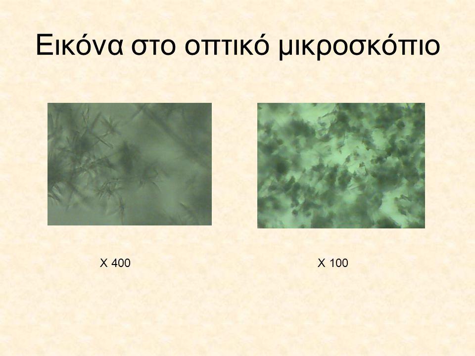 Εικόνα στο οπτικό μικροσκόπιο