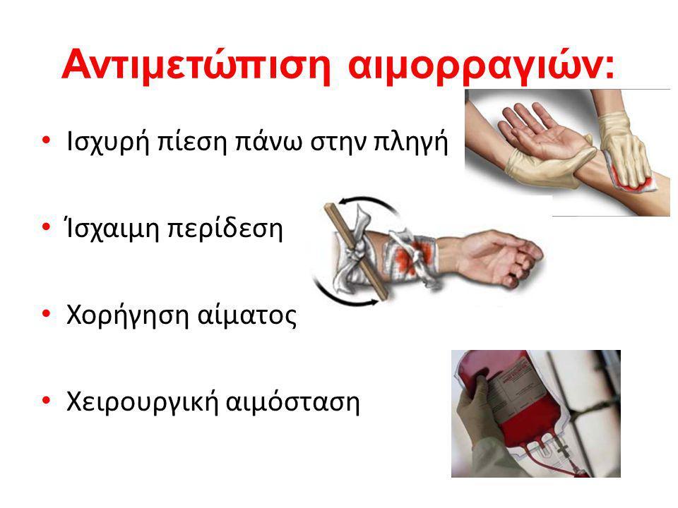 Αντιμετώπιση αιμορραγιών: