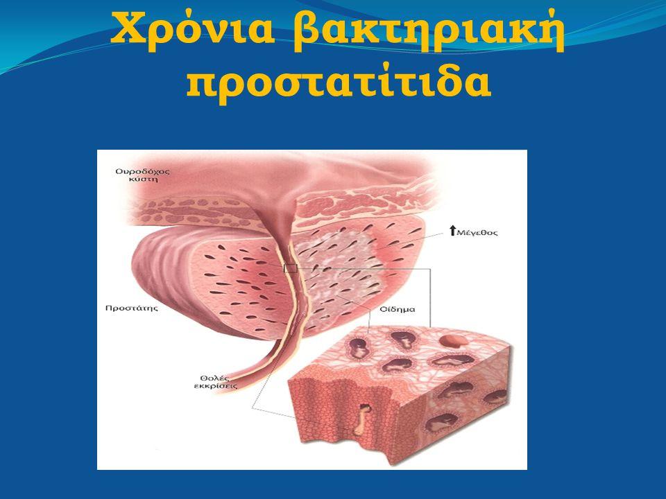 Χρόνια βακτηριακή προστατίτιδα