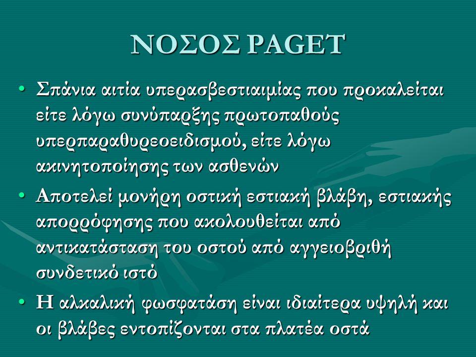 ΝΟΣΟΣ PAGET
