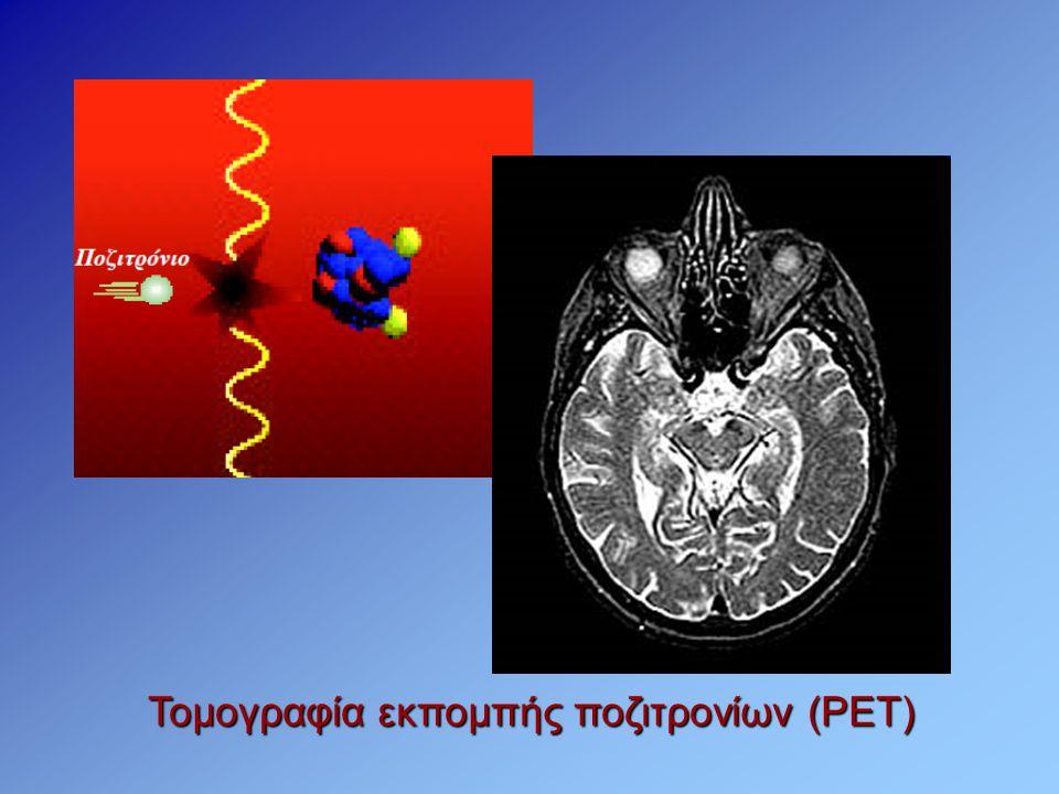 Τομογραφία εκπομπής ποζιτρονίων (PET)