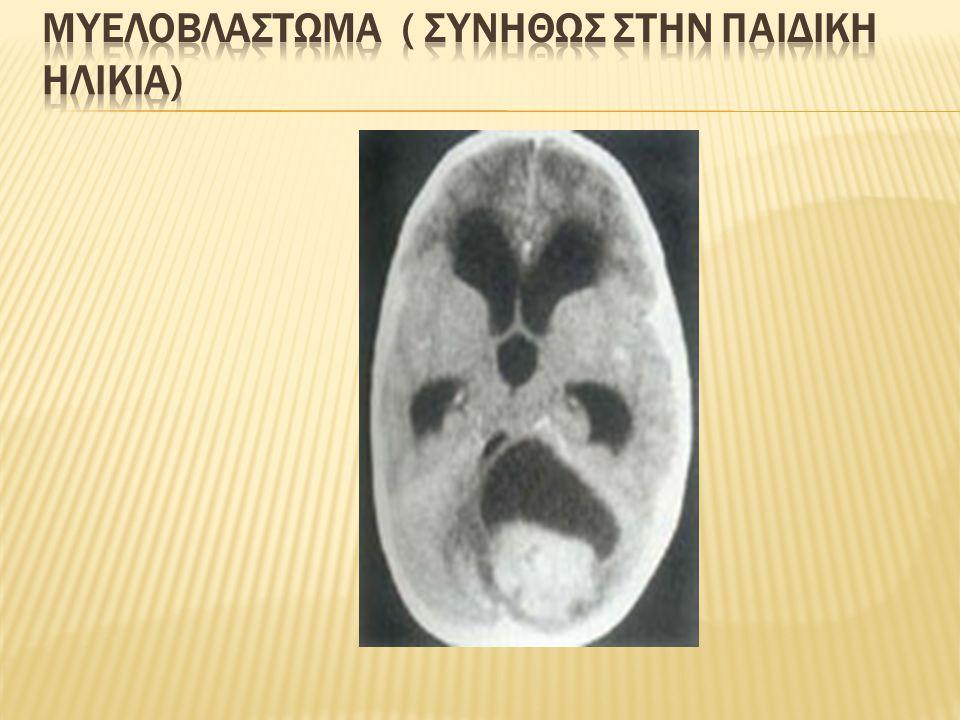 Μυελοβλαστωμα ( συνηθωσ στην παιδικη ηλικια)