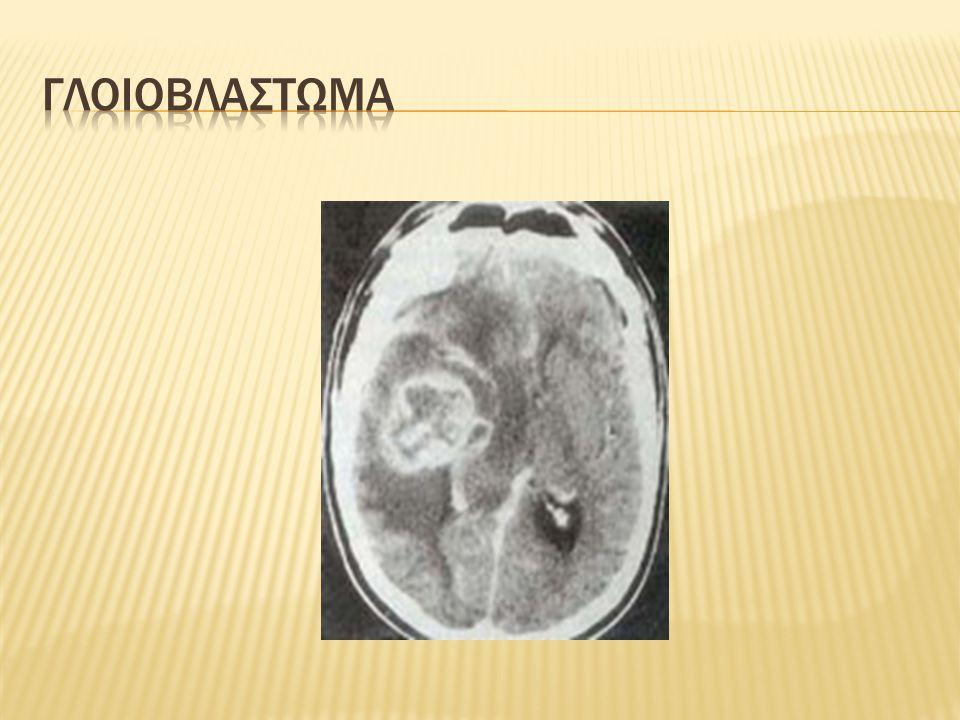 γλοιοβλαστωμα