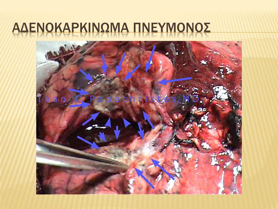 Αδενοκαρκινωμα πνευμονοσ