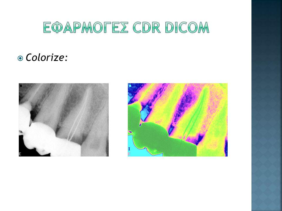 ΕΦΑΡΜΟΓΕΣ CDR DICOM Colorize: