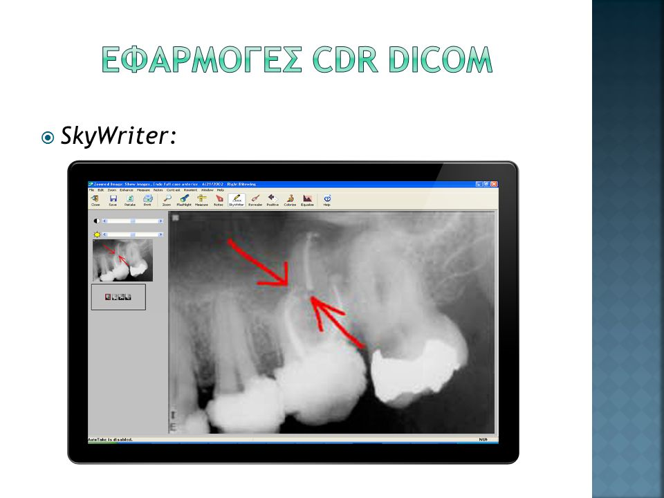 ΕΦΑΡΜΟΓΕΣ CDR DICOM SkyWriter: