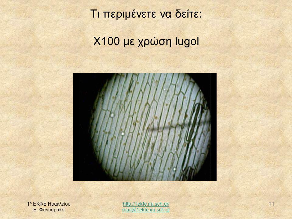 Τι περιμένετε να δείτε: Χ100 με χρώση lugol