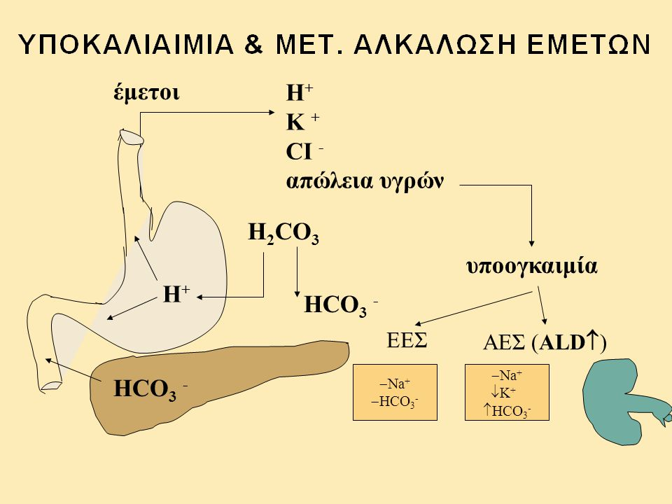 έμετοι Η+ Κ + CI - απώλεια υγρών H2CO3 υποογκαιμία H+ HCO3 - HCO3 -
