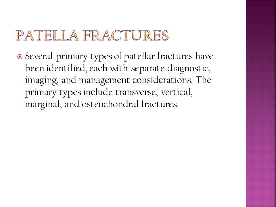 Patella Fractures