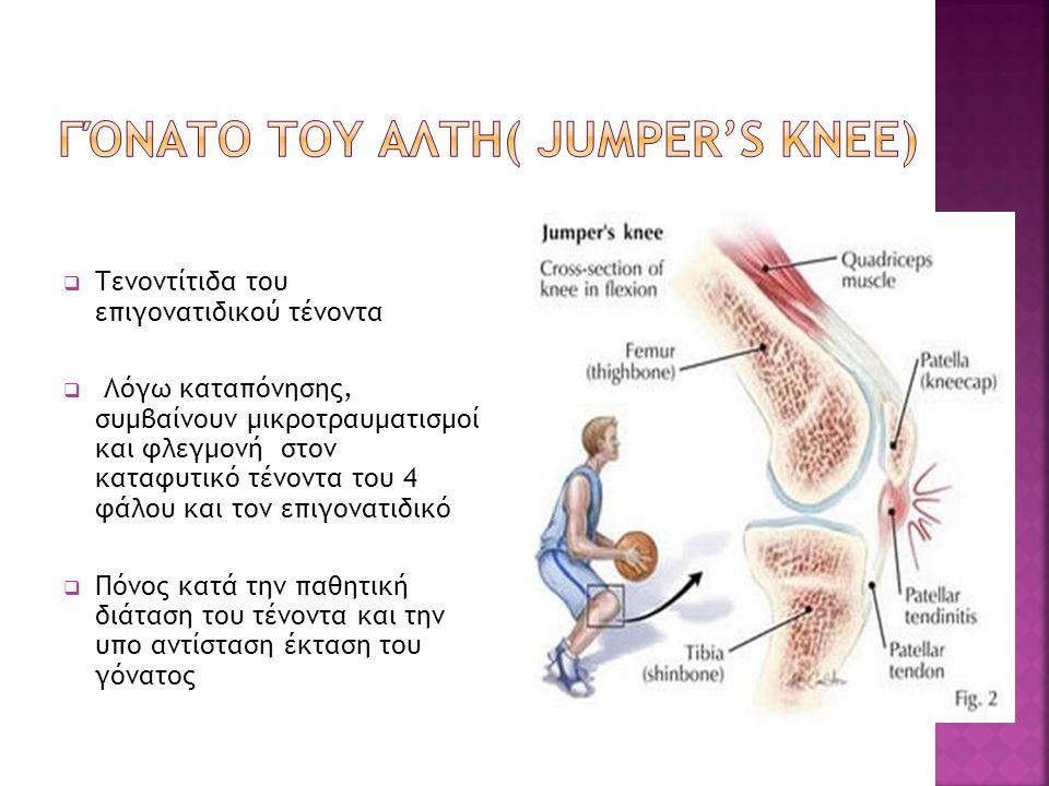 Γόνατο του Αλτη( jumper's knee)