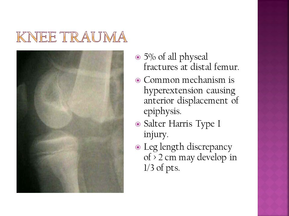 Knee Trauma 5% of all physeal fractures at distal femur.