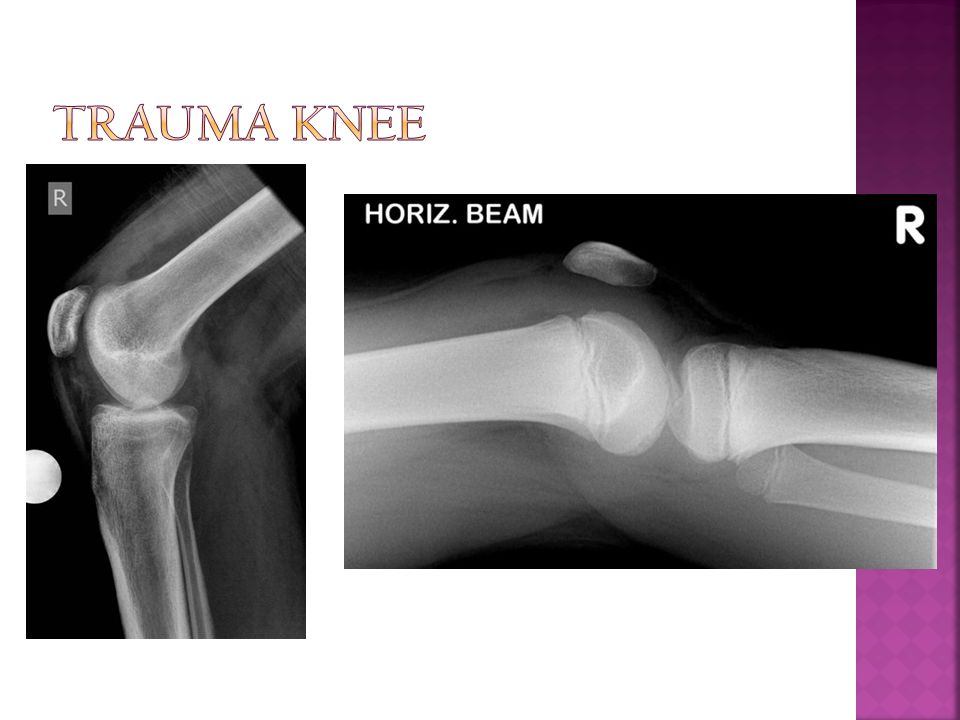 Trauma Knee