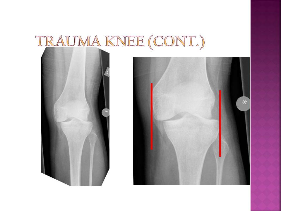 Trauma Knee (Cont.)