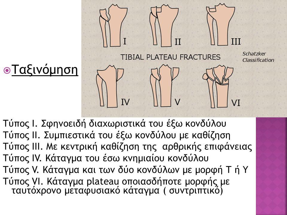 Ταξινόμηση Τύπος Ι. Σφηνοειδή διαχωριστικά του έξω κονδύλου