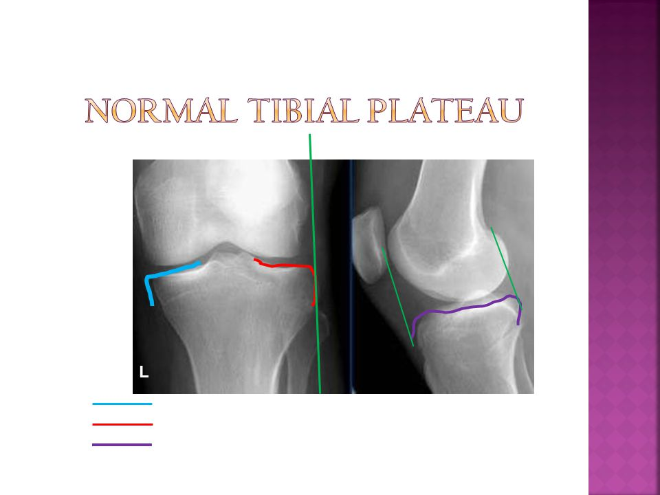 Normal Tibial Plateau L Medial tibial plateau Lateral tibial plateau
