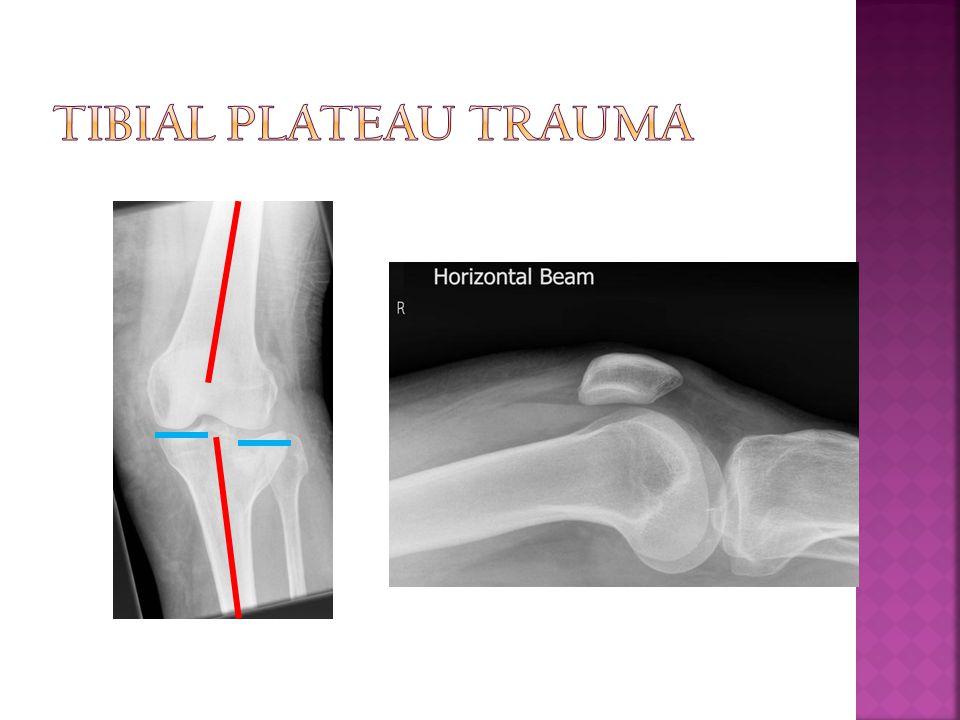 Tibial Plateau Trauma