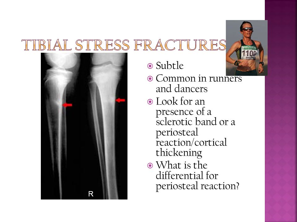 Tibial stress fractures