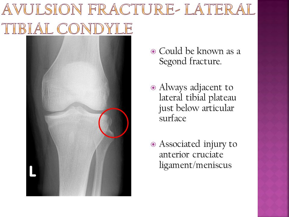 Avulsion fracture- lateral tibial condyle