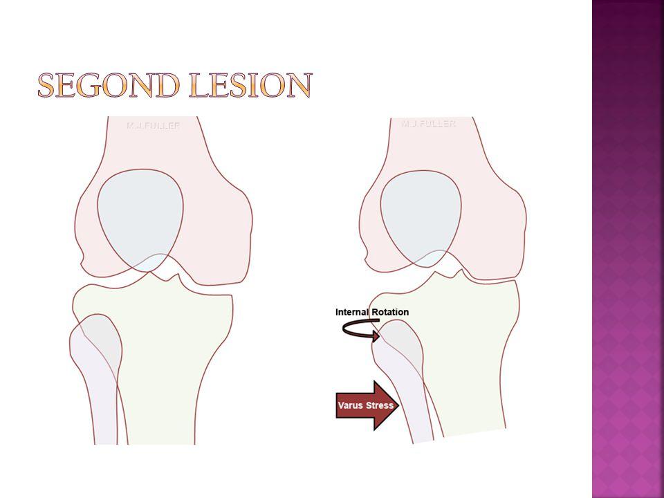 Segond Lesion