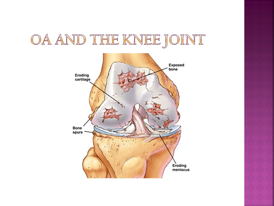 OA and the knee joint