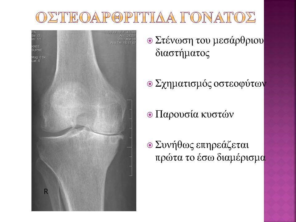 Οστεοαρθριτιδα γονατος
