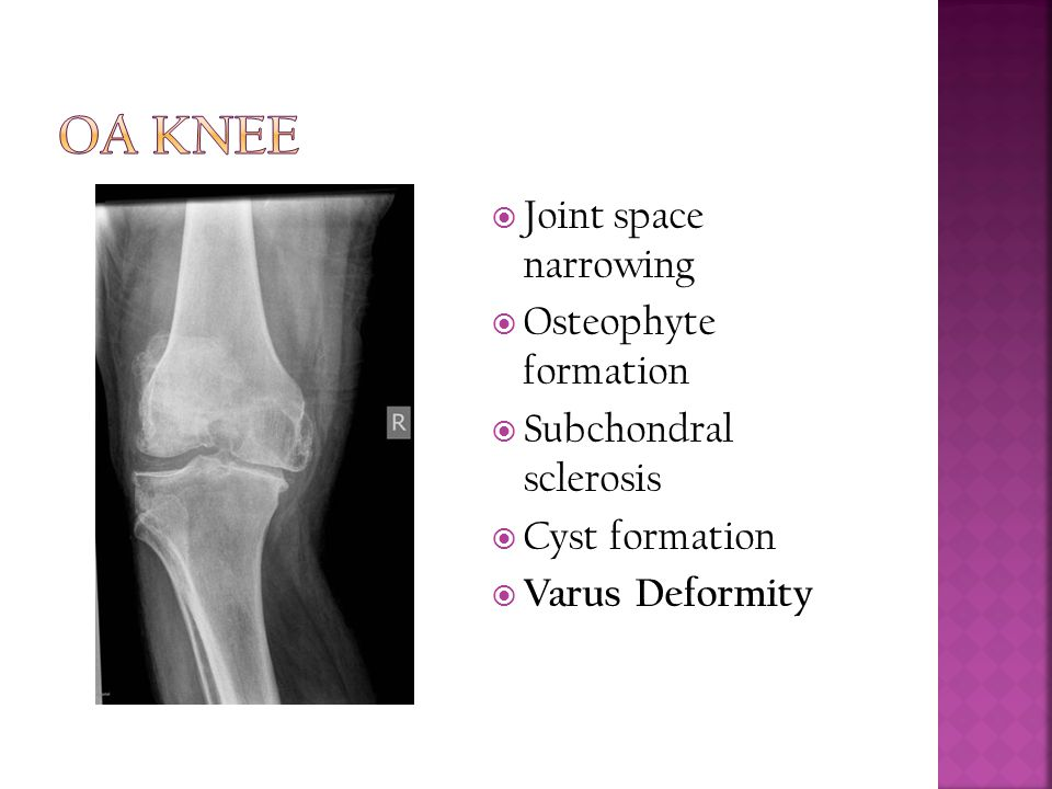 OA Knee Joint space narrowing Osteophyte formation