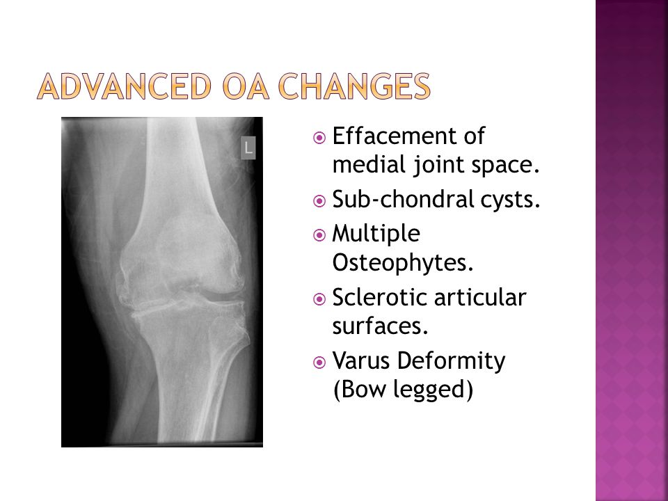 Advanced OA changes Effacement of medial joint space.