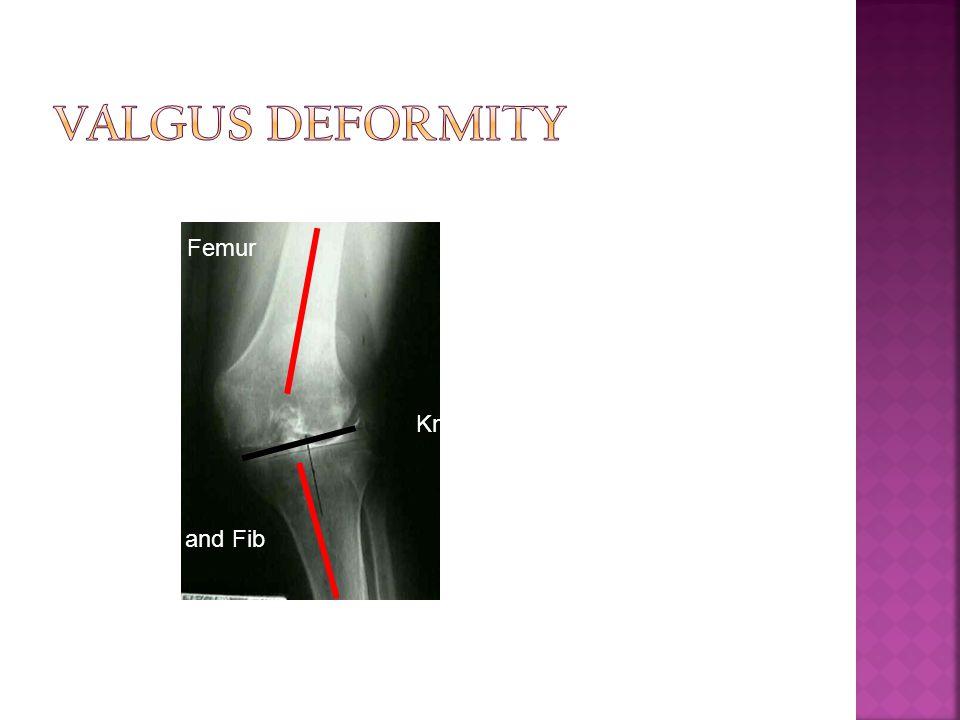 Valgus Deformity Femur