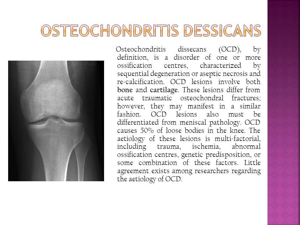 Osteochondritis Dessicans