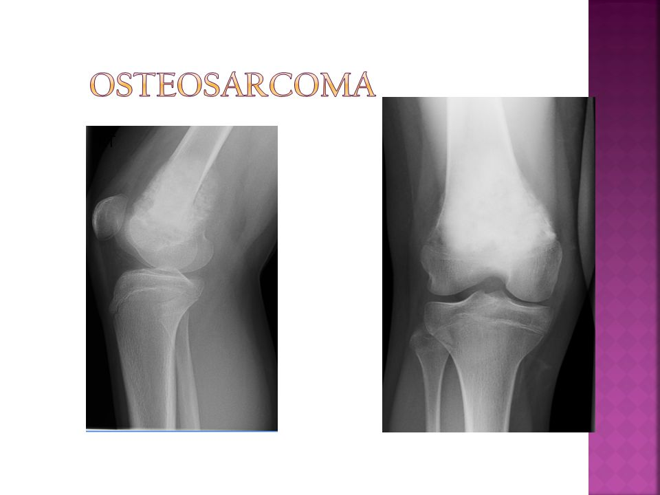 Osteosarcoma RT R