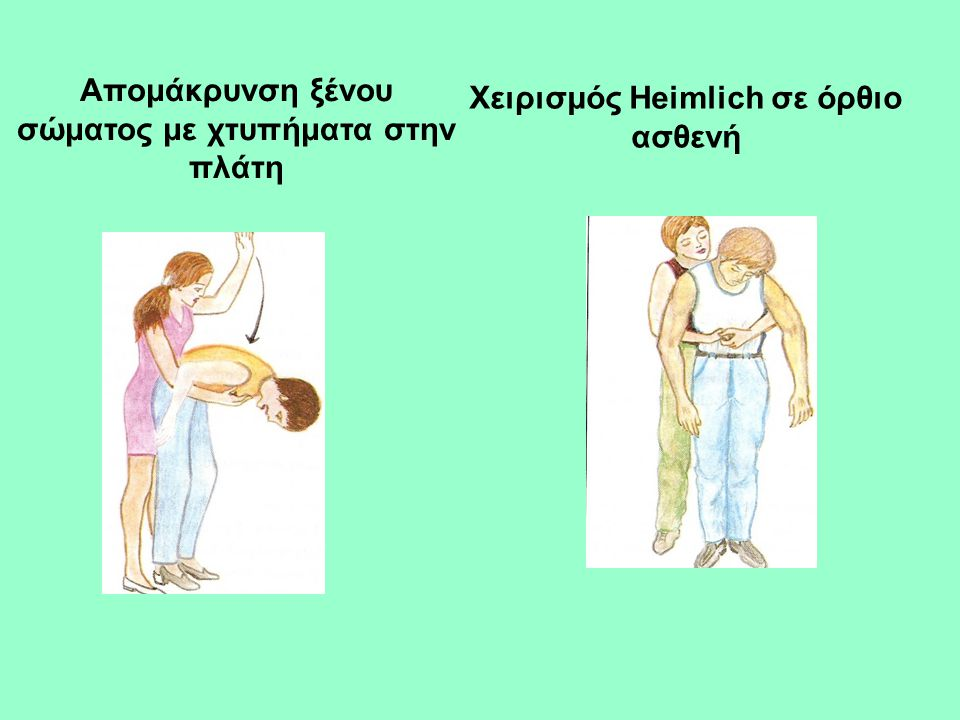 Απομάκρυνση ξένου σώματος με χτυπήματα στην πλάτη