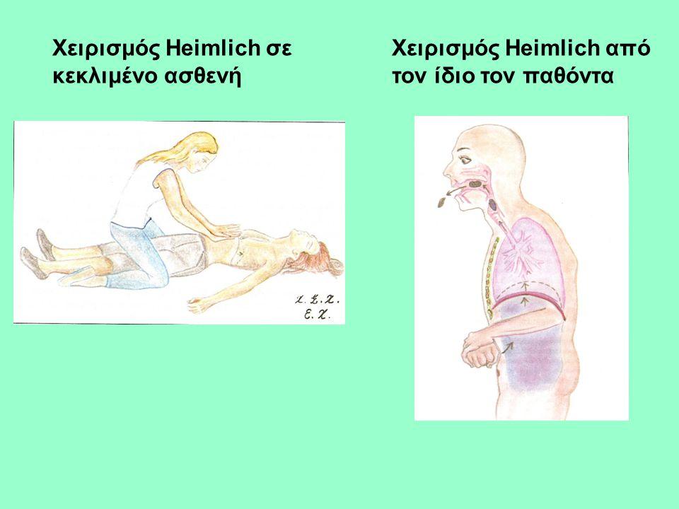 Χειρισμός Heimlich σε κεκλιμένο ασθενή