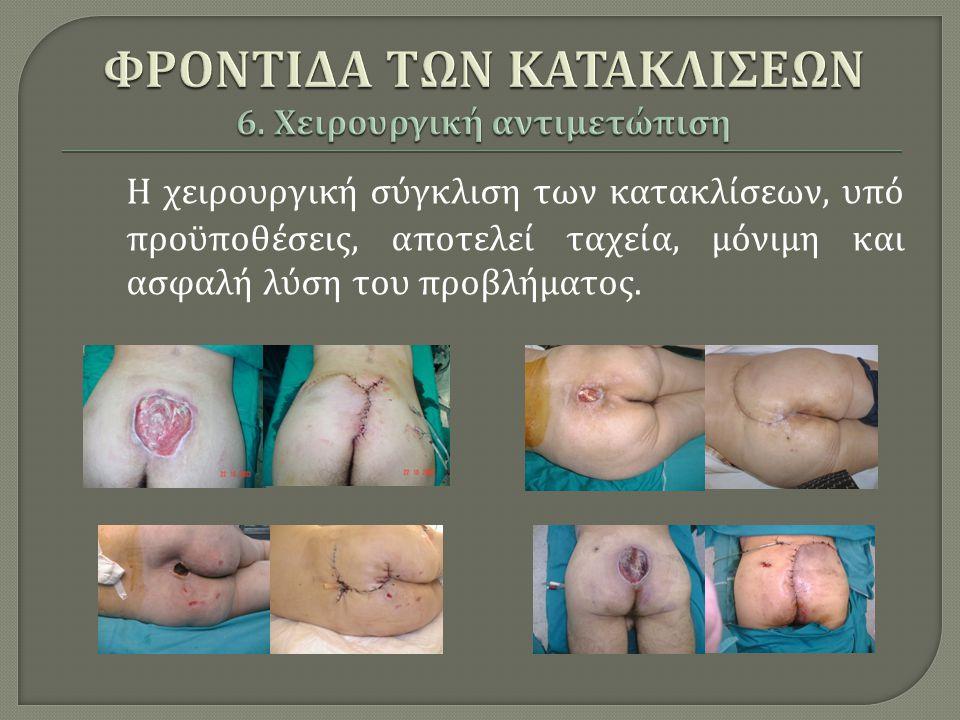 ΦΡΟΝΤΙΔΑ ΤΩΝ ΚΑΤΑΚΛΙΣΕΩΝ 6. Χειρουργική αντιμετώπιση