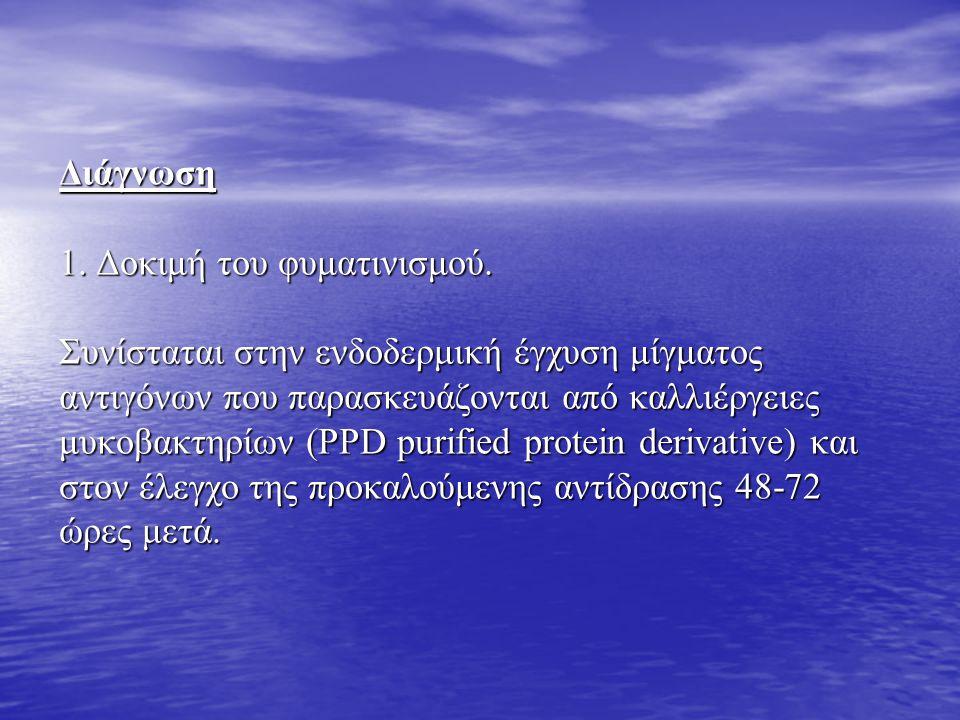 Διάγνωση 1. Δοκιμή του φυματινισμού