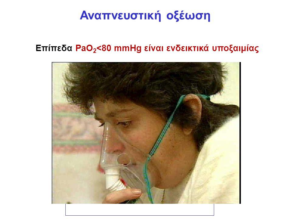Επίπεδα PaO2<80 mmHg είναι ενδεικτικά υποξαιμίας