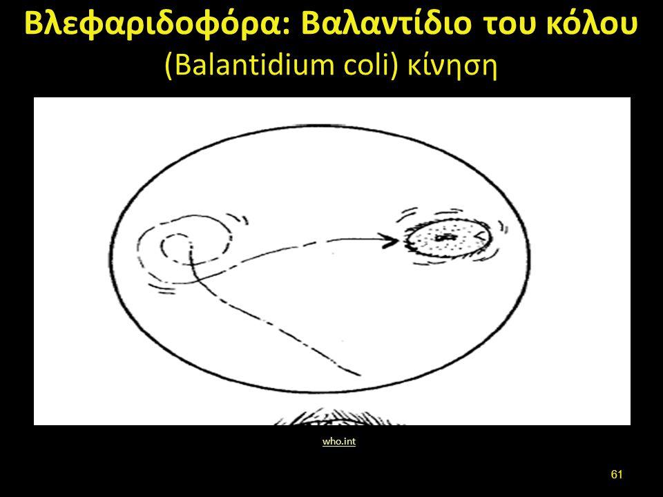 Βλεφαριδοφόρα: Βαλαντίδιο του κόλου (Balantidium coli) κύστες