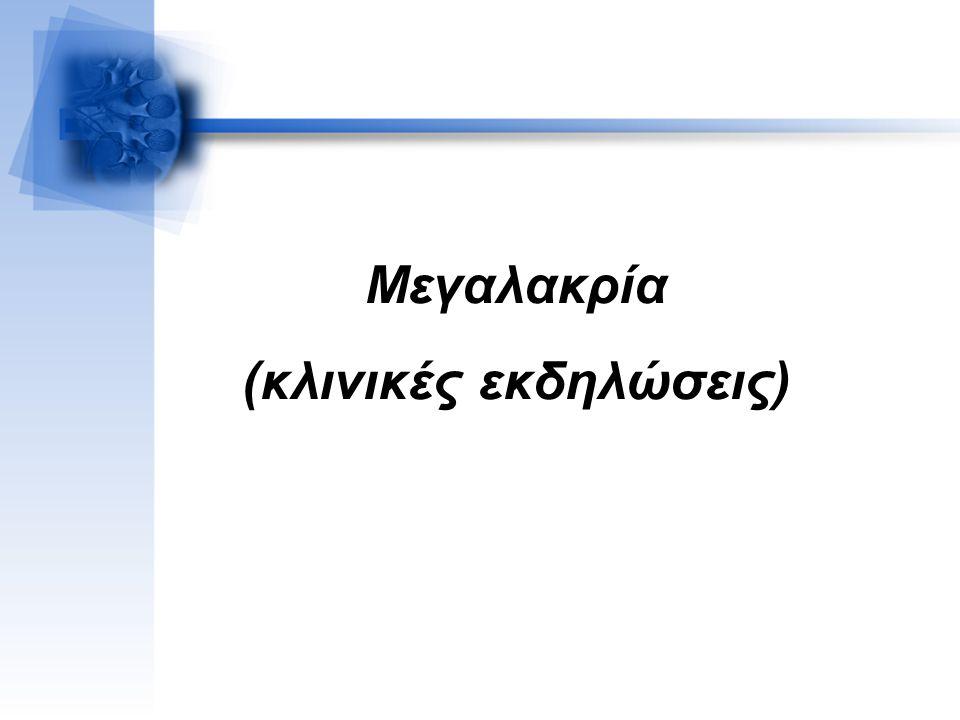Μεγαλακρία (κλινικές εκδηλώσεις)