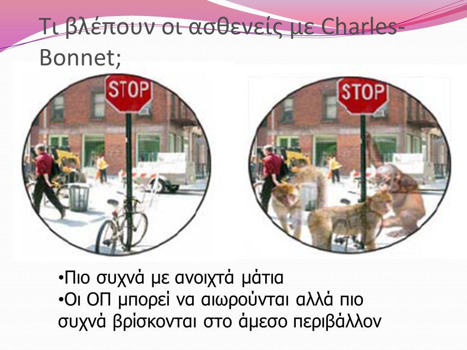 Τι βλέπουν οι ασθενείς με Charles-Bonnet;