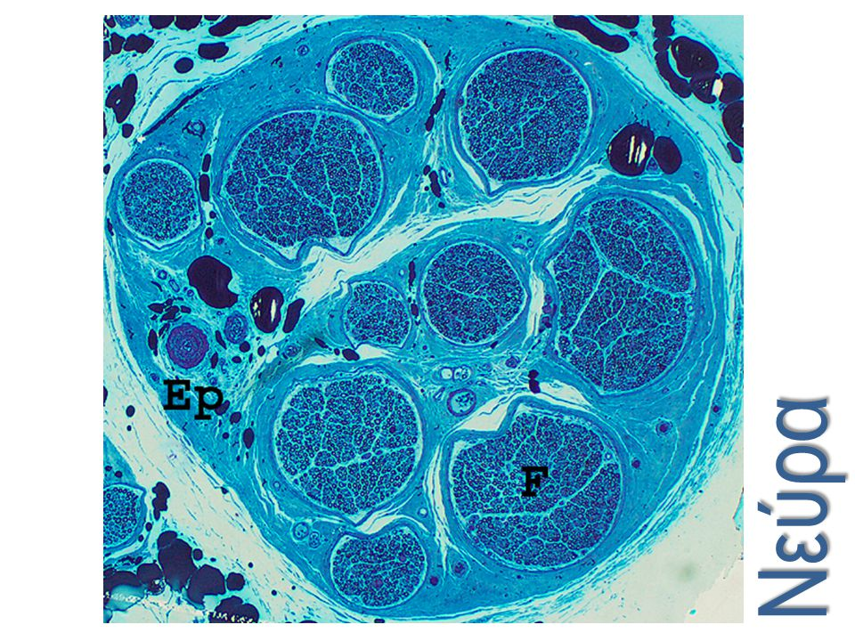 Normal sural nerve. This low power image shows a transverse section of essentially normal sural nerve embedded in plastic and stained with toluidine blue. Note the epineurium as it surrounds the nerve and blends with the adjacent connective tissue.Ep =epineurium; F = nerve fascicle. (Toluidine blue, 40x)